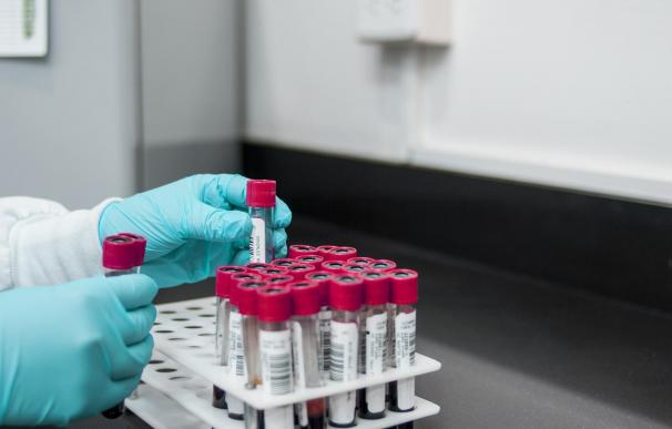 Ciencia coronavirus pruebas