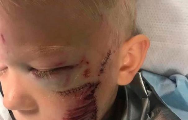 Niño de 6 años arriesga su vida al salvar a su hermana del ataque de un perro