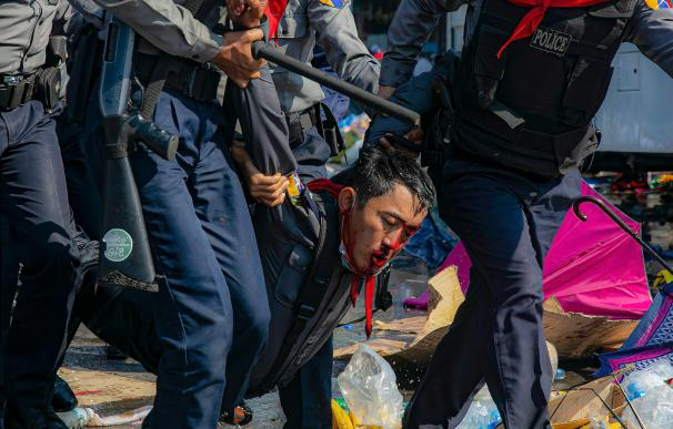 Un hombre herido tras las cargas policiales en una protesta contra el Gobierno militar en Birmania. KAUNG ZAW HEIN / ZUMA PRESS / CONTACTOPHOTO 10/2/2021 ONLY FOR USE IN SPAIN