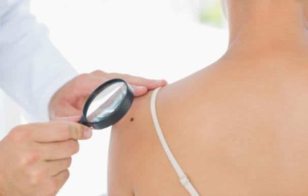 Expertos predicen que las tasas de mortalidad por melanoma bajarán en 2050