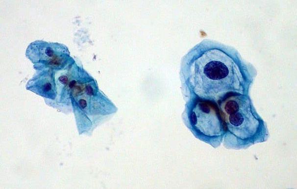 Aumentan los casos de cáncer de cabeza y cuello relacionados con el virus del papiloma