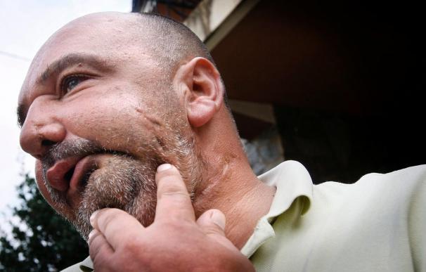 Retiran la pensión al hombre que recibió un disparo al evitar un crimen machista