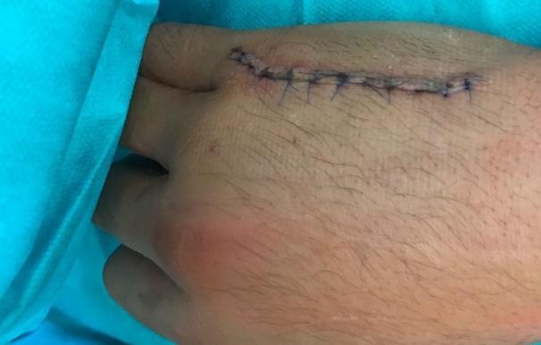 Un 'camello' rompe la mano de una patada a un mosso en Manlleu durante su huída