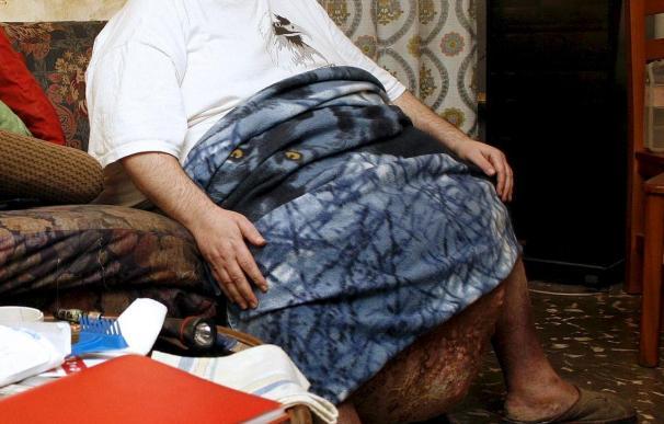 Un estudio advierte de que sobrepeso a mediana edad reduce la esperanza de vida