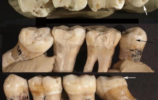 Un análisis de muescas en dientes de Neanderthal revela evidencia de odontología prehistórica