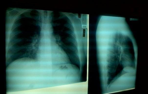 Un mayor envejecimiento y cronicidad, posibles causas de la subida de muertes por problemas respiratorios en España
