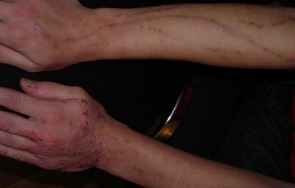 Alerta por primera vez en España por krokodil, la droga letal que causa gangrena