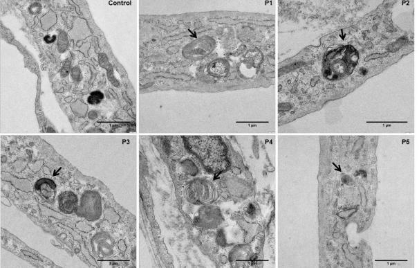 Describen un aumento del estrés oxidativo en las enfermedades metabólicas hereditarias