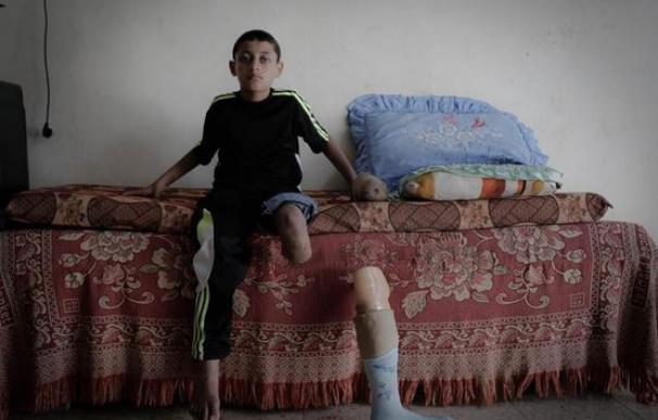 Ibrahim perdió su perdió su pierna en la guerra