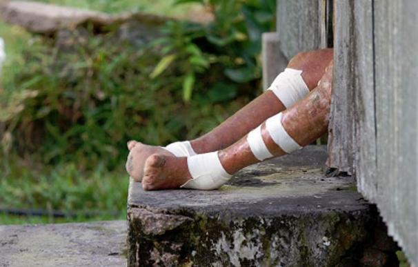 Pies de un hombre que sufre la lepra