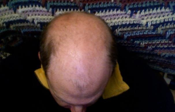 El bloqueo de unas enzimas en los folículos pilosos promueve el crecimiento del cabello