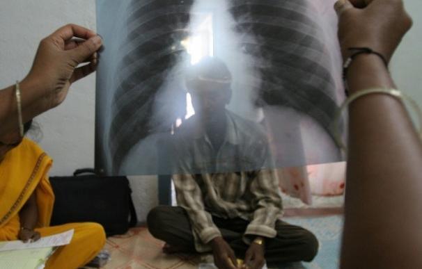 La OMS asegura que las muertes por tuberculosis se han reducido a la mitad en los últimos 25 años