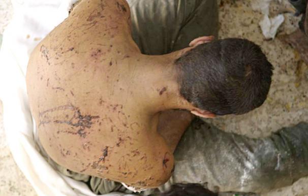 Un iraquí tiene heridas en la espalda y sus brazos después de ser torturado con electricidad - Getty Images