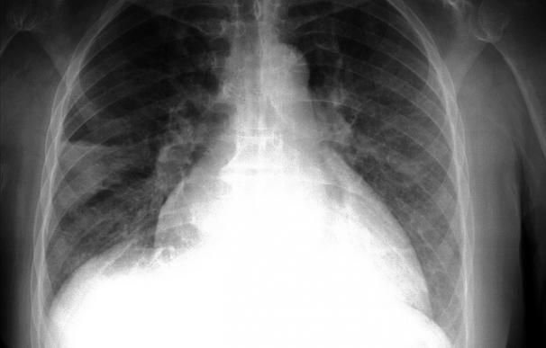 Hallan los orígenes ocultos de la hipertensión pulmonar