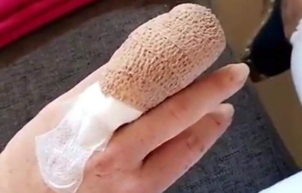 Lindsay Lohan pierde un trozo de dedo en un barco tras visitar a los refugiados en Turquía