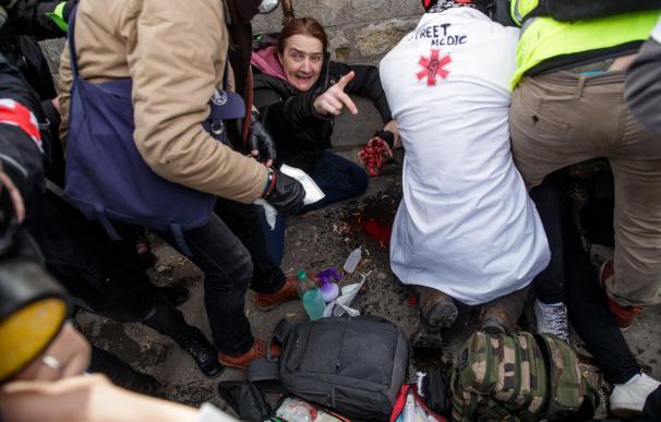 Médicos curan a un manifestante del movimiento 'chalecos amarillos' después de ser gravemente herido en la mano (EFE/EPA/CHRISTOPHE PETIT)