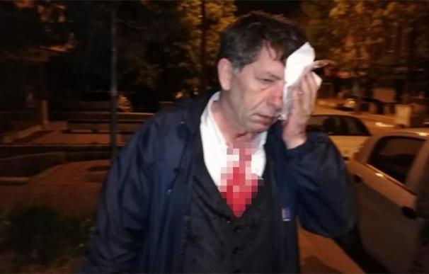 Yavuz Demirag antes de ingresar en el hospital. /Sozcu