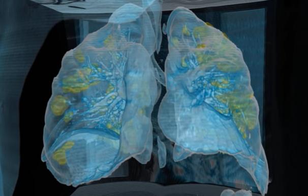 Pulmones coronavirus 3D