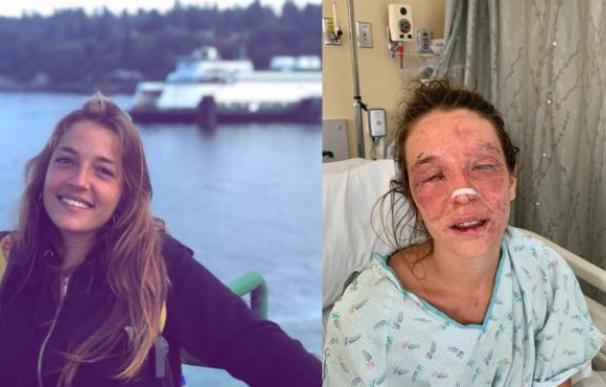 Marta Bustos, la joven que se ha quemado la cara