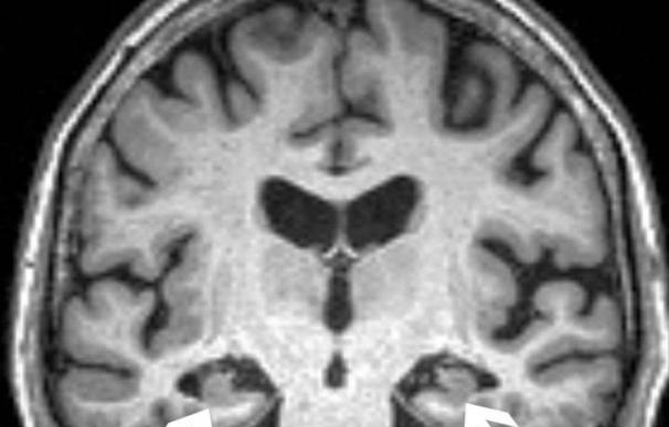 Cerebro resonancia mujer 72 años alzheimer